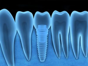 Learn why dental implants from your dentist in Joplin are the gold standard for artificial teeth.