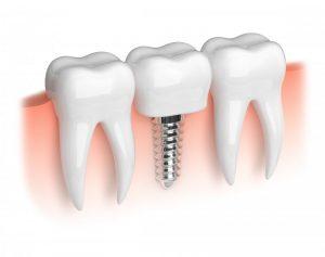 Illustration of dental implant.